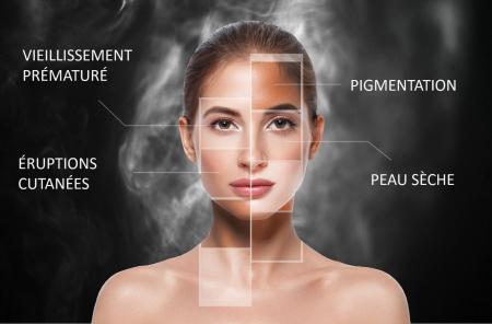 Pollution : quels effets sur notre peau ?